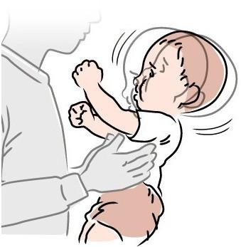 Sindromul copilului zgaltait / Shaken baby syndrome