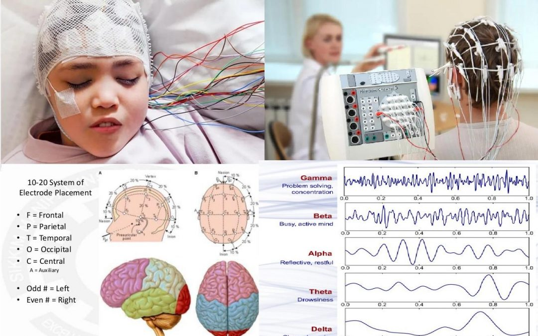 Electroencefalograma – EEG